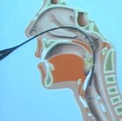 Equipamento de broncoscopia flexível sendo passado através da narina chegando até a laringe para em seguida atingir a traqueia e os brônquios.