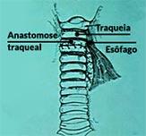 Sequência da uma cirurgia de correção de fístula esofagotraqueal